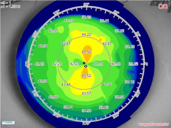 Test misurazione astigmatismo
