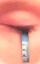 Diagnosi occhio secco: test di Schirmer