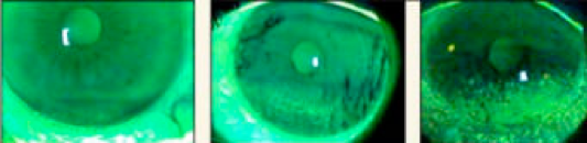 Esame occhio secco: luce di Wood