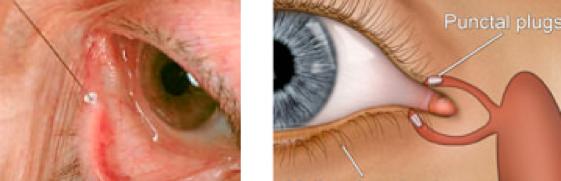 Occhio secco rimedi: occlusione dei puntini lacrimali