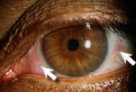 Occhio secco sintomi: bruciore occhi