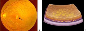 Degenerazione maculare senile secca. Drusen soffici