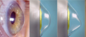 Cheratocono e struttura della cornea