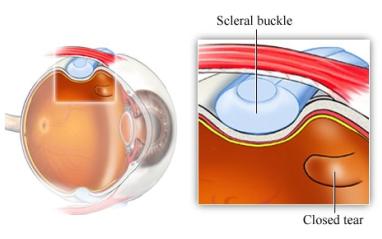 Chirurgia episclerale - operazione distacco della retina