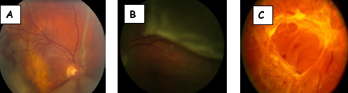 Distacco della retina regmatogeno