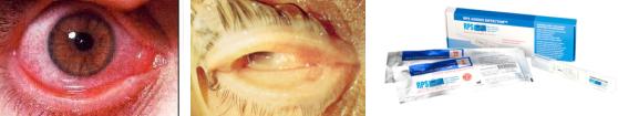 Congiuntivite infettiva iperemica