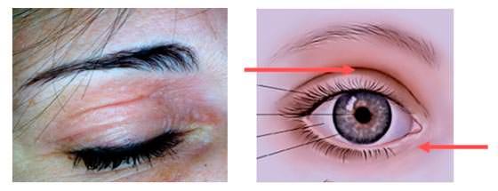 Dermatite palpebrale: edema e arrossamento
