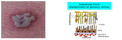Fluido nella vescica. Corioretinopatia sierosa