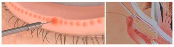 Procedura di Maskin per cura blefarite seborroica