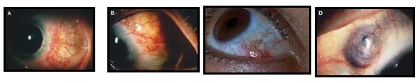 Diversi tipi di scleriti