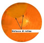 Aspetto globoso distacco di retina