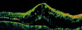 BRVO con edema maculare cistoide