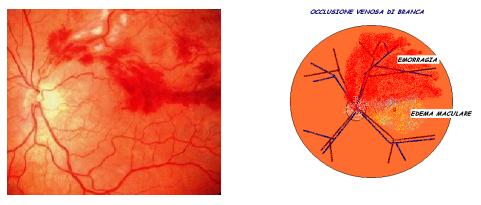 BRVO occlusione venosa di branca
