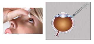 Farmaci edema maculare cistoide