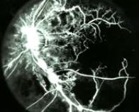 Fluorangiografia ischemia retinica