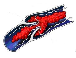 Formazione trombi occlusioni vascolari
