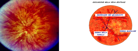 Occlusione vena centrale retina