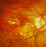 Oftalmoscopia miopia patologica