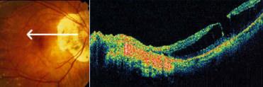 Schisi e distacco della retina