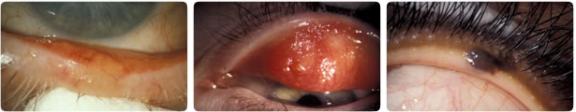 Adenocarcinoma sebaceo tumori maligni palpebre