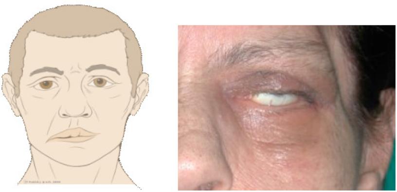 Deformazione viso paralisi nervi cranici