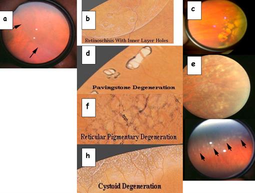 Degenerazioni retiniche fori e distacco di retina