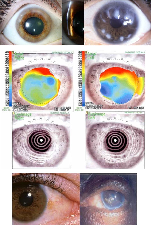 Distrofie corneali degenerazione di Salzmann