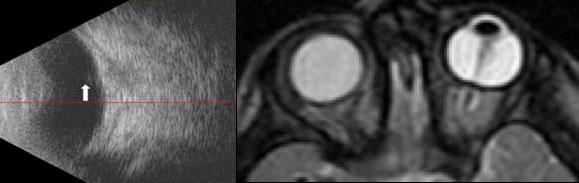 Ecografia sindrome vascolarizzazione fetale
