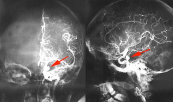 Esame aneurisma arteria cerebrale