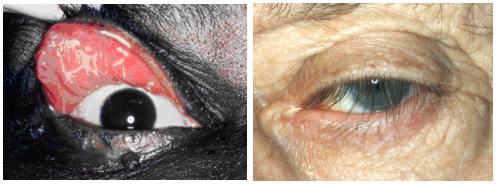 Floppy eyelid syndrome, palpebra lassa