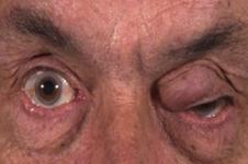 Melanoma tumore maligno palpebre