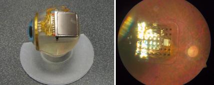 Microchip impianto retinico retinite pigmentosa