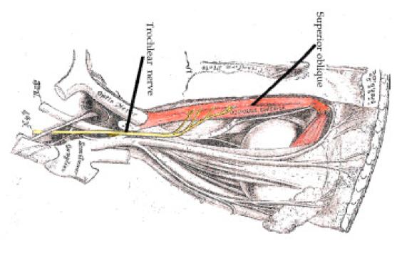 Nervo cranico trocleare