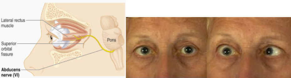 Paralisi sesto nervo cranico