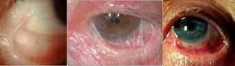 Pemfigoide oculare cicatriziale