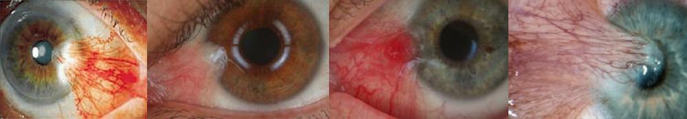 Pterigio e superficie corneale