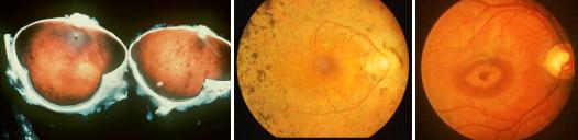 Retinite pigmentosa: cos'è