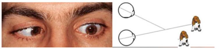 Sintomi diplopia visione doppia