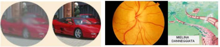 Sintomi neurite ottica