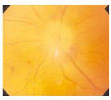 Sintomi neuropatia ottica ischemica AION