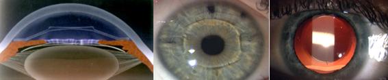 Sostituzione del cristallino con lente IOL fachica