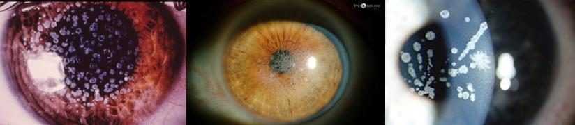 Tipi di distrofia granulare