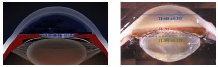 Cataratta: segmento oculare con cristallino trasparente