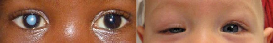 Figura 2. Esempi di patologie (cataratta, a. e ptosi congenita, b.) dell'occhio destro capaci di provocare ambliopia da deprivazione