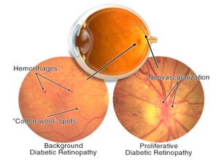 Confronto retinopatia diabetica proliferante e non proliferante