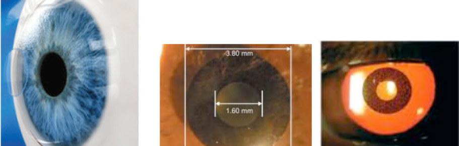 Correzione miopia laser