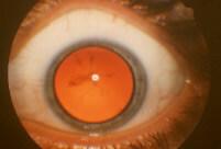 Cristallino opaco retinite pigmentosa