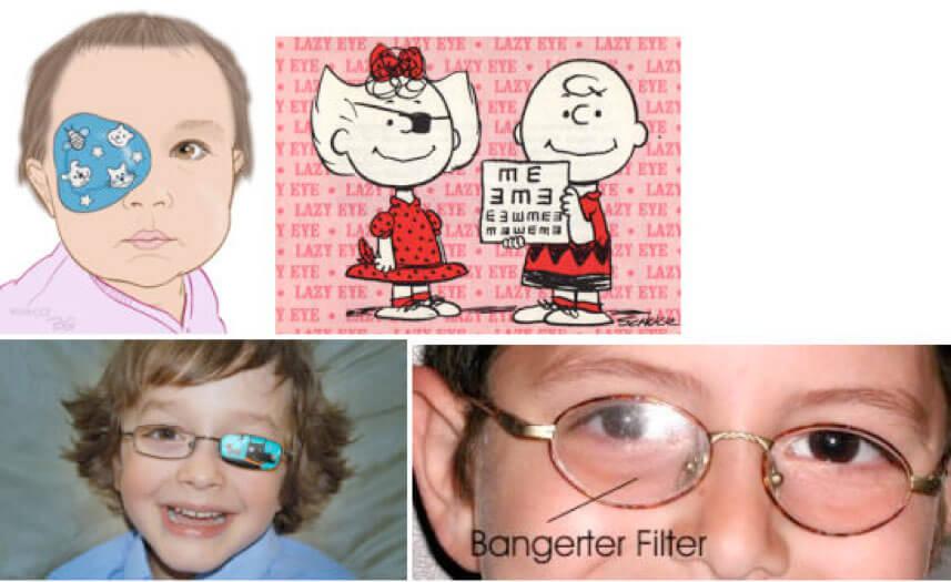 Figura 6. Occlusione con benda adesiva (a, b) e su occhiale (c). Filtro di Bangerter montato sulla lente dell'occhio destro (d)