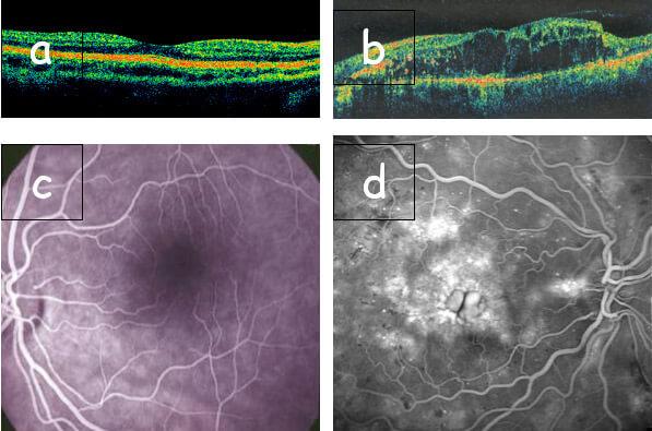 Esame oct retinopatia diabetica