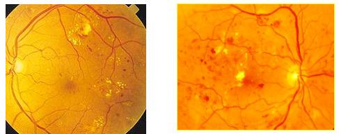 Fase iniziale retinopatia diabetica